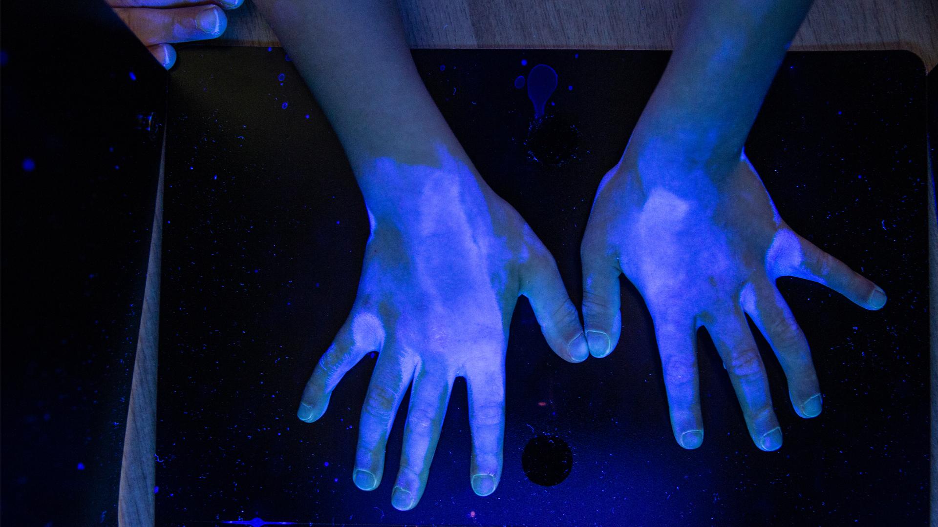 Bacteria seen in UV Light